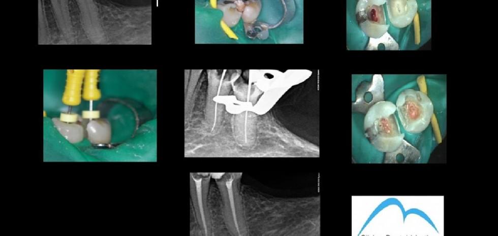 Endodoncia-34-252C35