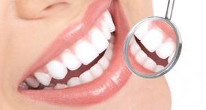 blanqueamiento dental oviedo