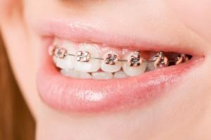 ortodoncia oviedo